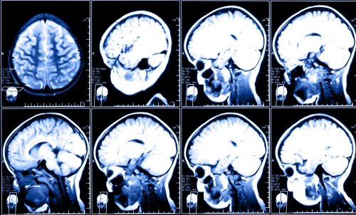 Anoxic and Hypoxic Brain Injuries