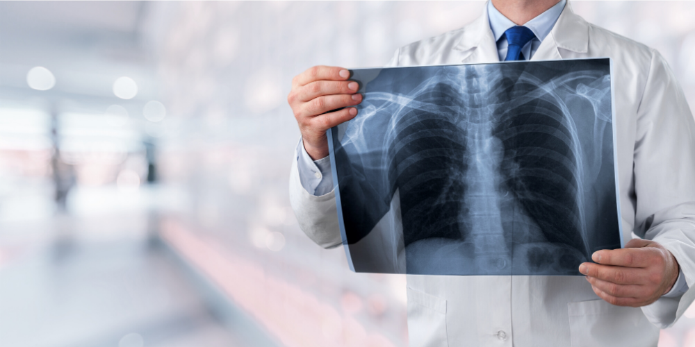 Failure to Diagnose Lung Cancer: Who is Liable?